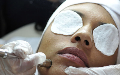 Microdermabrasion in St. Petersburg, Florida