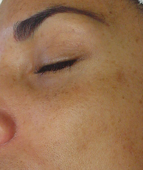 HydraFacial Before 2