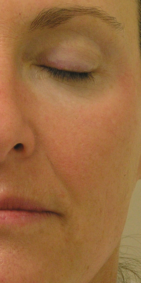 HydraFacial Before 3