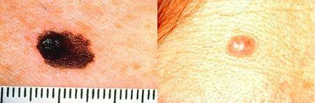 melanoma - a