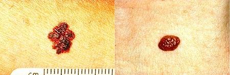 melanoma - b