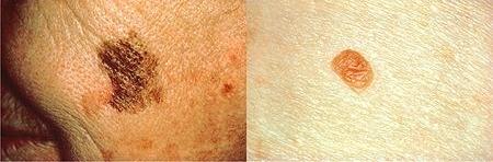 melanoma - d