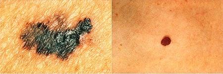 melanoma - v